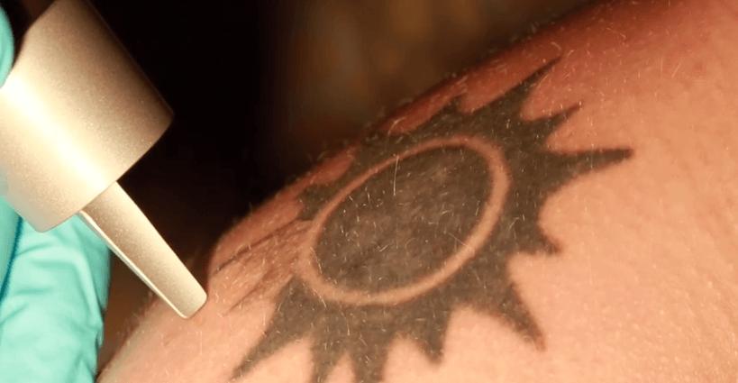 Removiendo un tatuaje con laser