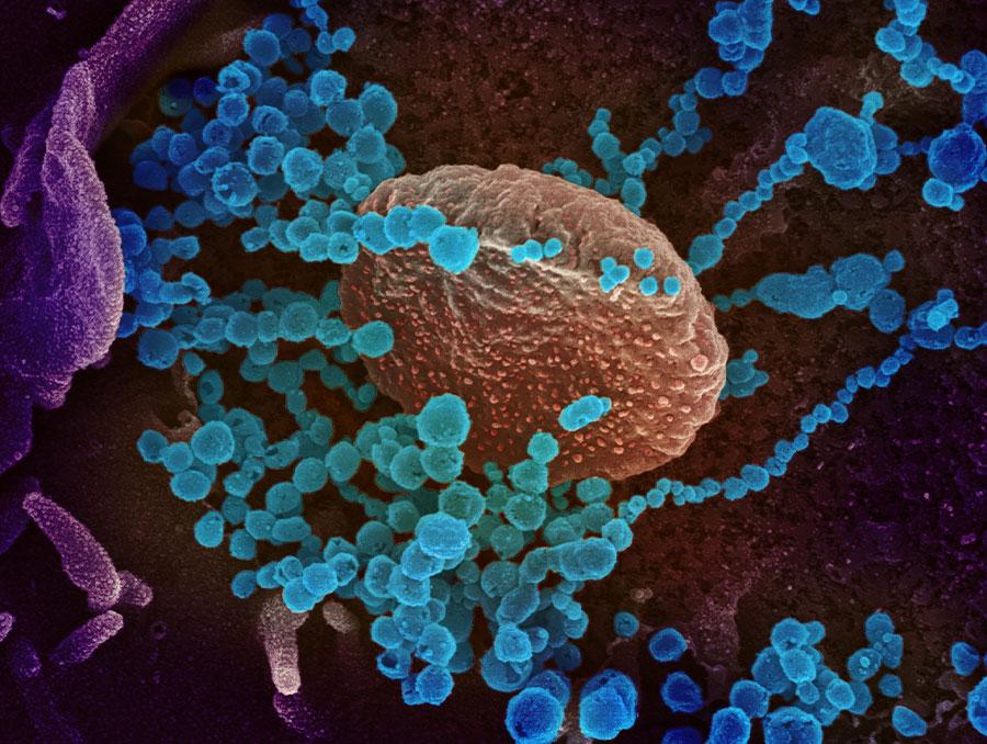 Coronavirus Research Now Open Access | University of Nevada, Reno