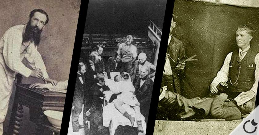 Resultado de imagen de 14 TERRIBLES datos sobre la CIRUGÍA en la Época Victoriana