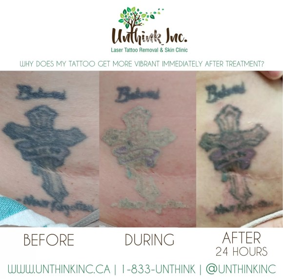 Tattoo look darker post tattoo removal treatment? | Unthink Inc.