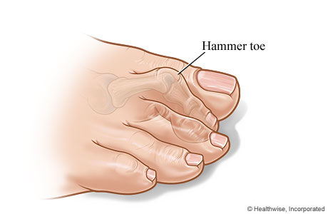 Pain in the 2nd Toe While Walking