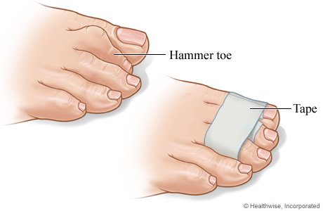 hammer toe pain