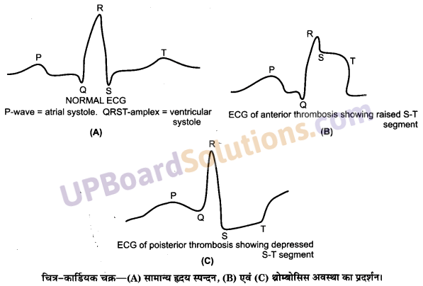 UP Board Solutions for Class 11 Biology Chapter 18 Body Fluids and Circulation