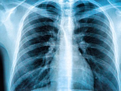 An X-ray of the chest showing the lungs, heart and ribs