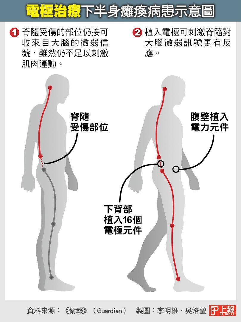 【革命性脊髓治療】半身癱瘓可「起而行」 電極刺激肌肉運動 -- 上報 / 國際