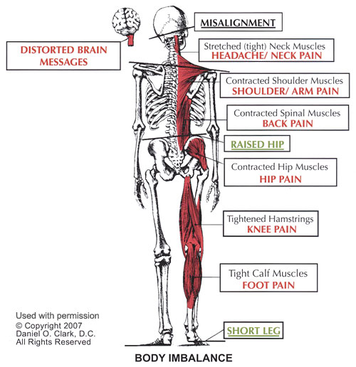 image explaining low back pain