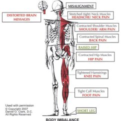 Nerves In Neck And Shoulder Diagram Freightliner Mt45 Wiring Pinched Nerve The Doctors Specialists Treatments Subluxation Induced Cervical Radiculopathy A Upper Chiropractic