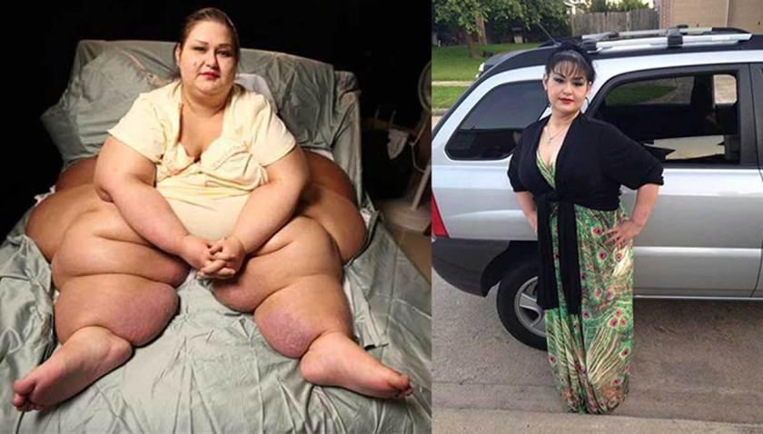 """Resultado de imagen de la gorda que bajo 400 kilos"""""""
