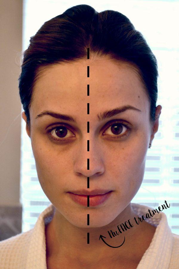 NuFACE at Home Facial lift