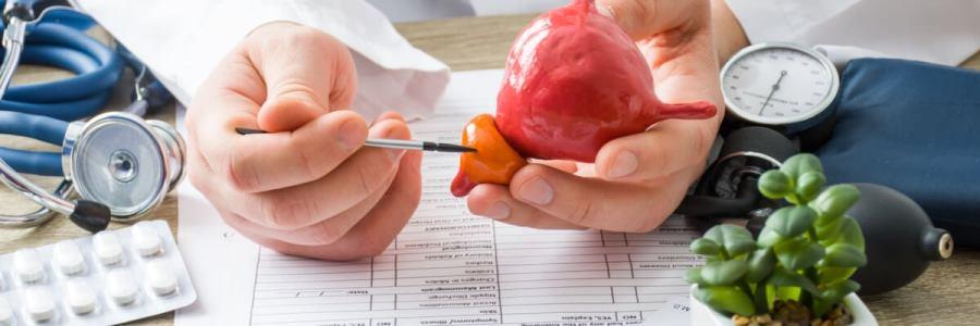 Consejos para prevenir el cáncer de próstata y reducir el riesgo