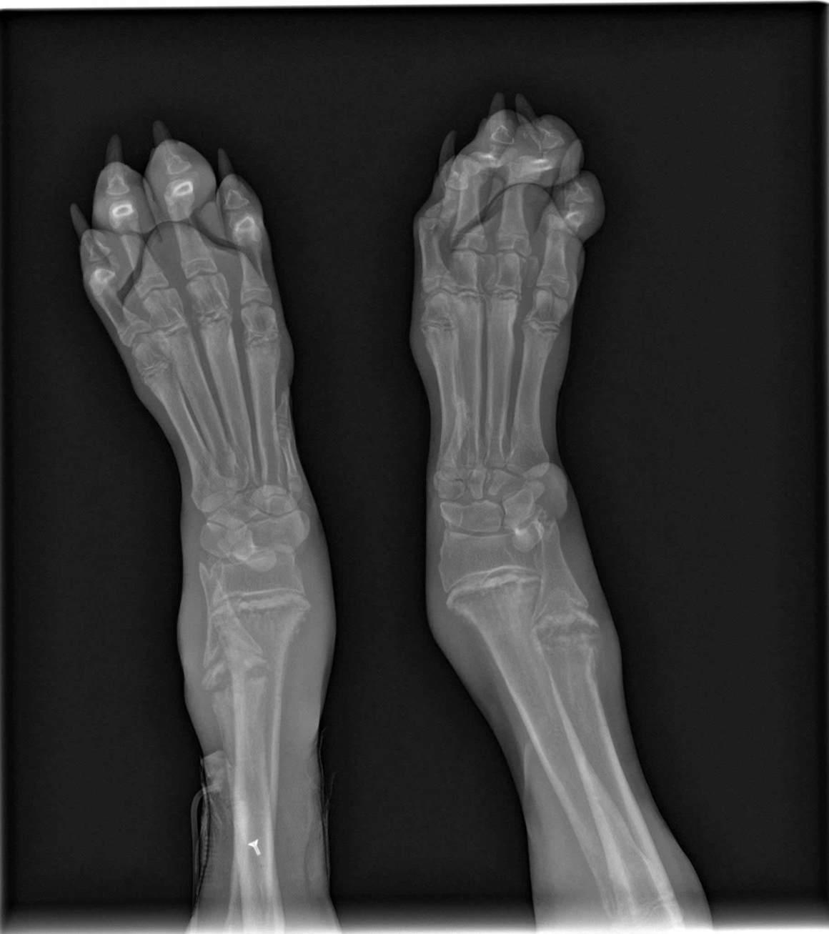 Hypertrophe Osteodystrophie