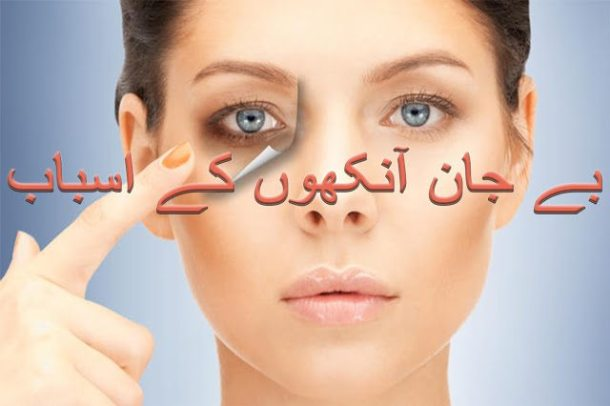 eye strain symptoms in urdu and hindi