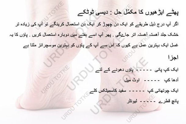 Cracked Heels Remedies Foot Care Tips in Urdu