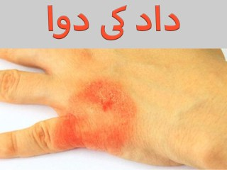 Ringworm Home Treatment In Urdu