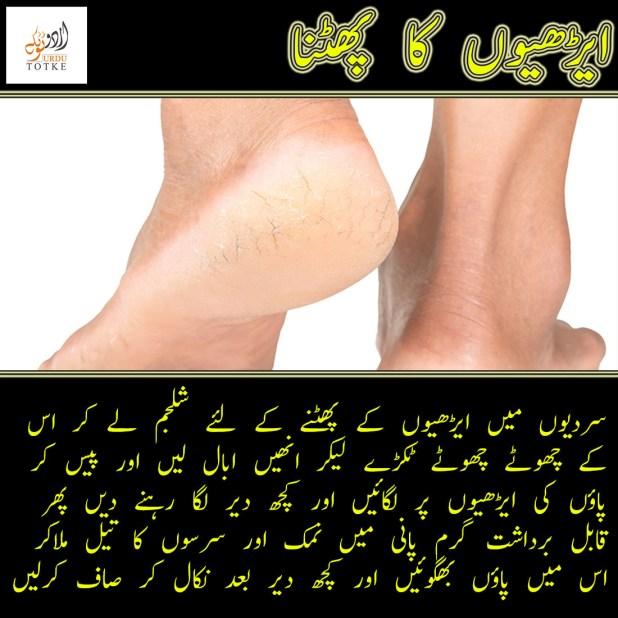 cracked heels treatment in urdu