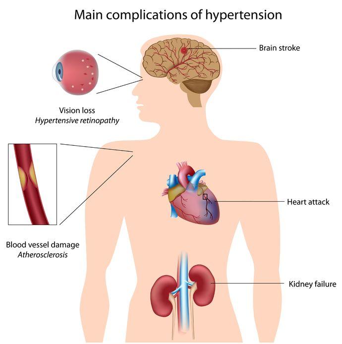 Hypertension  Cardiology  Highland Hospital  University