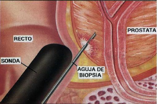 papilloma magyarul quanto dura intervento papilloma virus