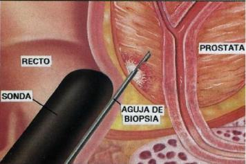 biopsia-transrectal-de-prostata