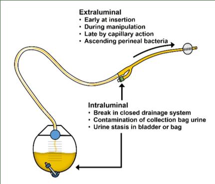 Intermittent Urinary Catheterization - Галерија слика