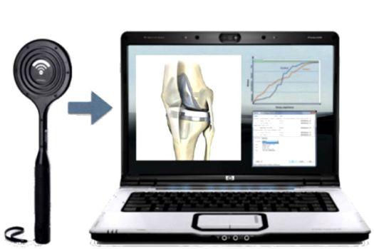 Comment BoneTag veut rendre les prothèses de genou intelligentes