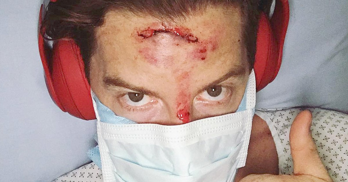 Shaun White Talks About His Accident 2018 Winter Olympics
