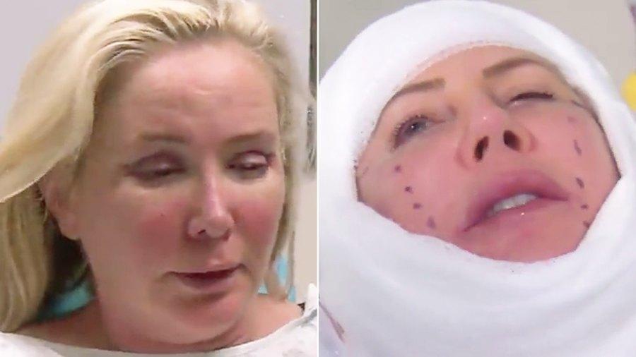 Shannon Beador Vicki Gunvalson Surgery