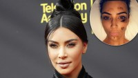 Kim Kardashian Gets Candid About Psoriasis, Diet Changes