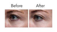 Pronexa Lavish Eyes Anti-Aging Eye Serum Before After