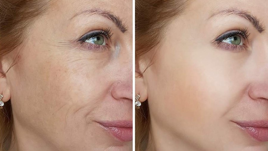 rosehip oil before and after