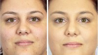 Hey Honey Trick and Treat CC² Active Moisturizing Cream before and after