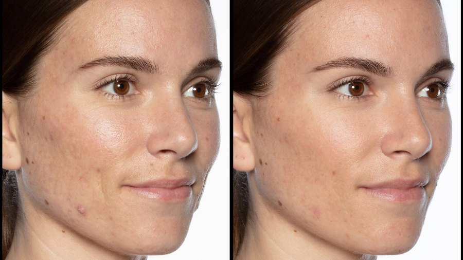 Sunday Riley Good Genes Serum Before and After