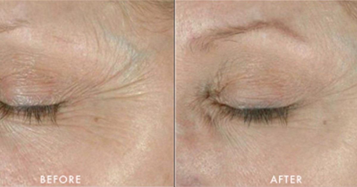 This Powerful Eye Treatment Helps You Expertly Tackle Crow's Feet