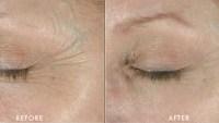 Obagi Medical ELASTIderm Eye Cream, 0.5 oz