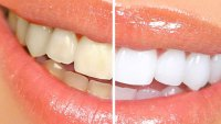 Teeth-Before-and-After
