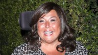 Abby Lee Miller Reveals Facelift Results See Before After Photos
