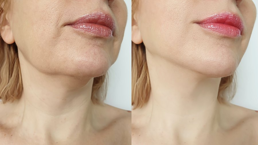 Before-After-Neck-Treatment-Stock-Photo