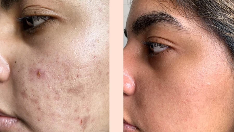 before-after-peace-out-acne