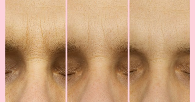 90% of Users Saw Improved Wrinkles Just 2 Hours After Using These Patches.jpg