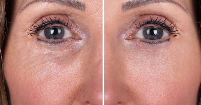 Say Goodbye to Eye Lines With This Peptide-Infused Tightening Gel.jpg