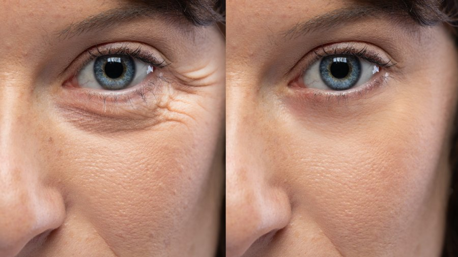 Before-After-Eye-Wrinkle-Stock-Photo