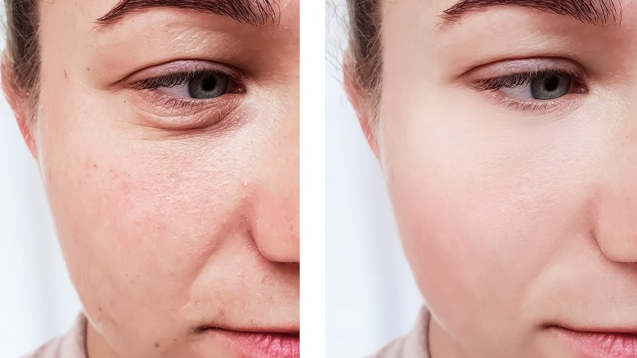 hyaluronic-acid-before-after
