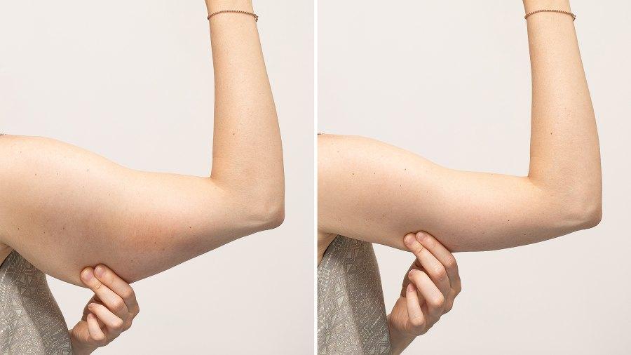 tightening-cream-arms