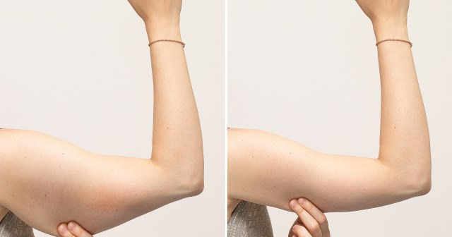 This $10 Tightening Cream Has Been Essential for Shoppers' Weight Loss.jpg