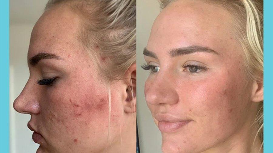 tula-skincare-acne-gel