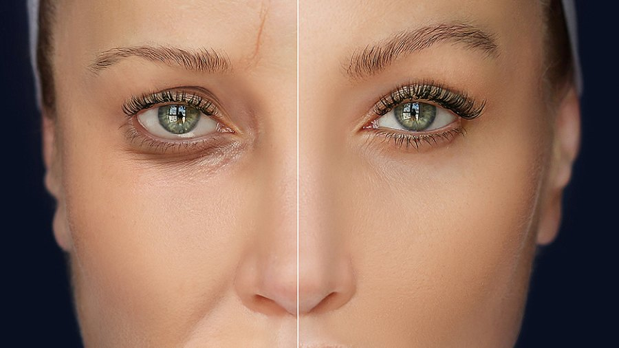 wrinkles-before-after