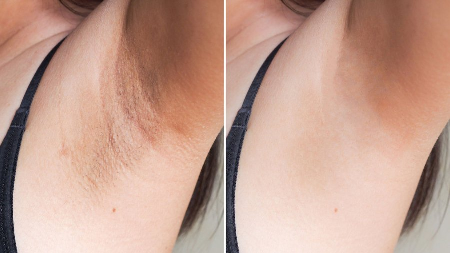 Body-Dark-Patches-Corrector-Will-Make-You-Want-to-Show-Off-All-Your-Skin-001