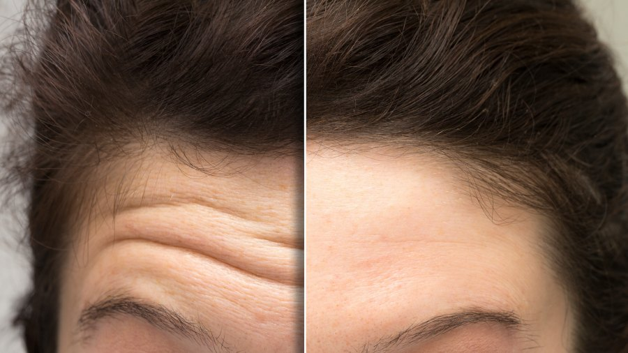 Forehead-Lines-Before-After