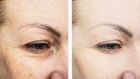Wrinkle-Treatment-Stock-Photo