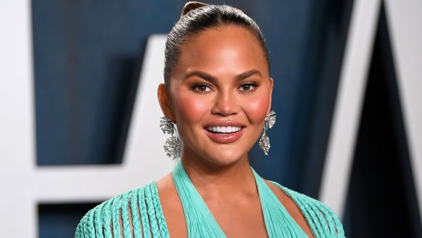 Chrissy Teigen Reveals the Results of 'Fat Removal' Surgery on Her Face