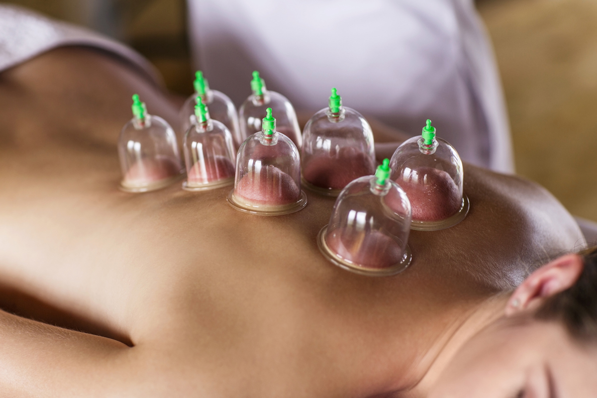 Can Cupping Promote Healing and Pain Relief  Wellness  US News